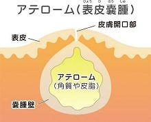 粉瘤(アテローム)・脂肪腫